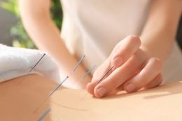 All Acupuncture Needles