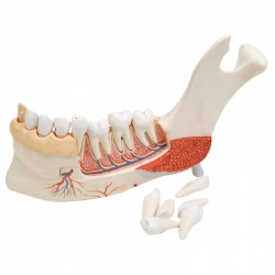 Advanced Half Lower Jaw Model with 8 Diseased Teeth (19-Part)