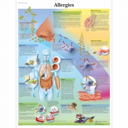 Allergies Chart