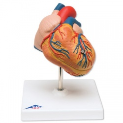 3B Scientific Heart Model with Left Ventricular Hypertrophy (2-Part)