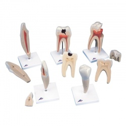 Classic Tooth Models