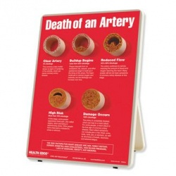 Death of an Artery Easel Display