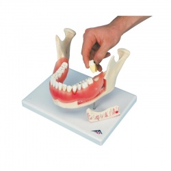 Dental Disease Model (21-Part)
