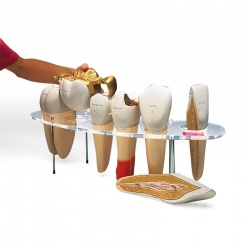 Dental Morphology Series Models