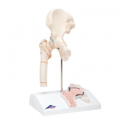 Femoral Fracture and Hip Osteoarthritis Model