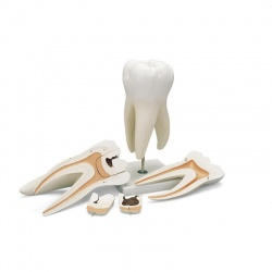 Giant Molar Model with Dental Cavities (5-Part)